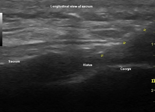 Caudal injection longitudinal sonographic view