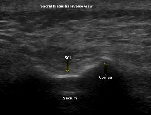 Caudal Injection Sonographic View