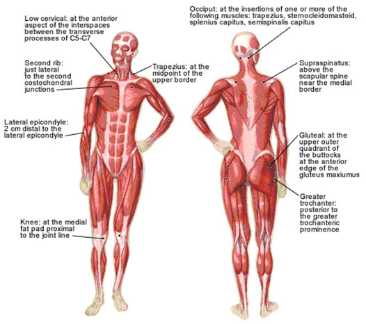 myofascial-pain-18-anatomically-defined-tender-points-in-fms