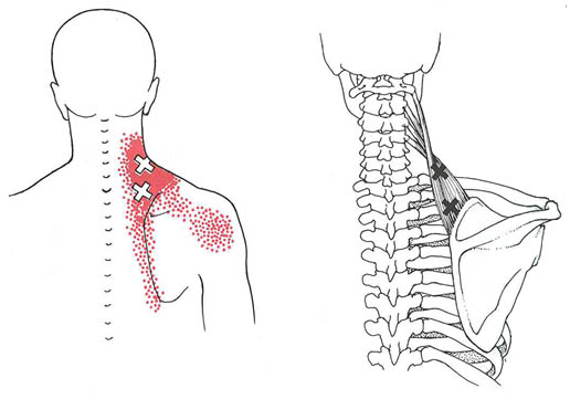 myofascial-pain-consolidated-referred-pain-patter