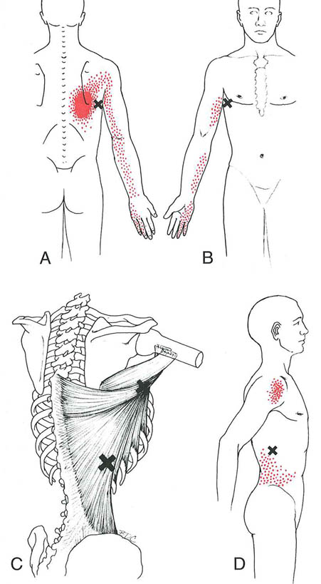 myofascial-pain-referred-pain-patterns