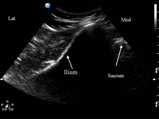 pudendal-nerve-injection-sonogram-showing-underlying-bony-structures