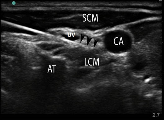 stellate-ganglion-block-sonogram-of-the-anterolateral-neck